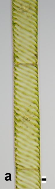 アオミドロの細胞内の螺旋状の葉緑体