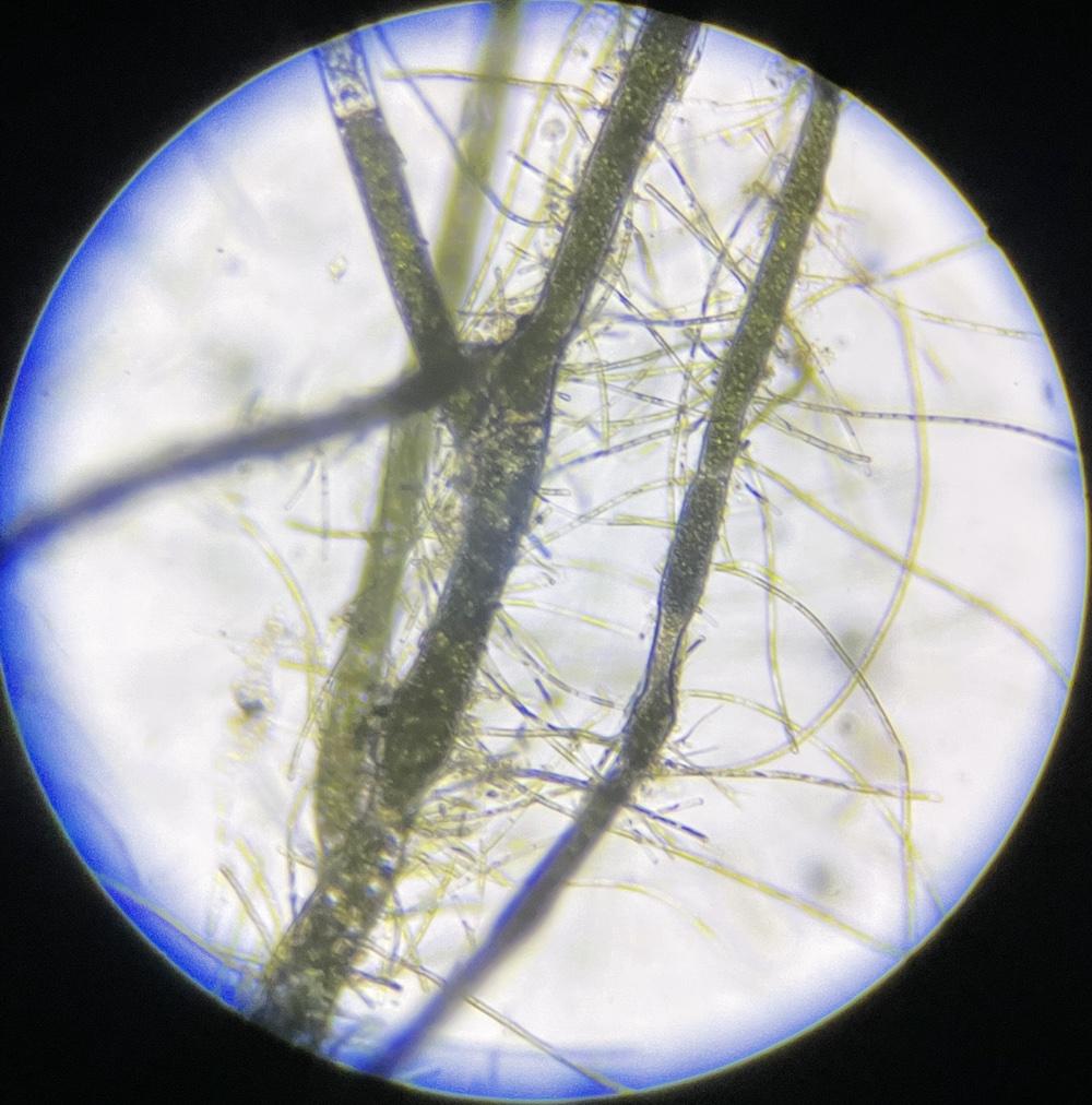 別の藻が絡みついている国産マリモの細胞
